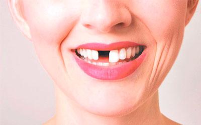 Преждевременное выпадение зубов - Стоматология Линия Улыбки