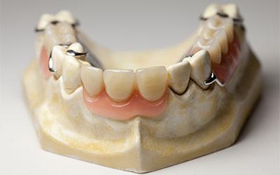 Протезное востановление улыбки - Стоматология Линия Улыбки
