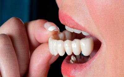 Примерка коронки - Стоматология Линия Улыбки