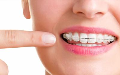 Безлигатурные брекеты - Стоматология Линия Улыбки