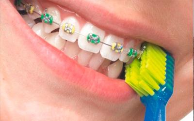 Брекеты для подростков - Стоматология Линия Улыбки