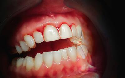 Десквамативный гингивит - Стоматология Линия Улыбки