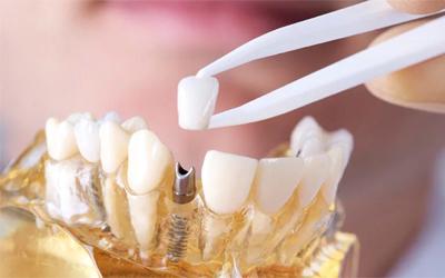 Имплантация - Стоматология Линия Улыбки