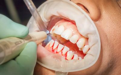 Катаральный гингивит - Стоматология Линия Улыбки