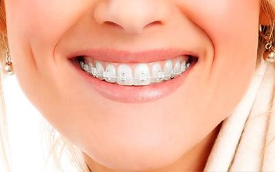 Керамические брекеты плюсы и минусы - Стоматология Линия Улыбки