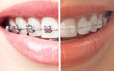 Керамические и металлические брекеты сравнение - Стоматология Линия Улыбки