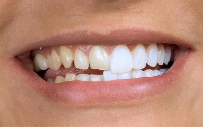 Когда стоит ставить виниры - Стоматология Линия Улыбки