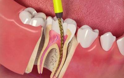 Лечение зубных каналов - Стоматология Линия Улыбки