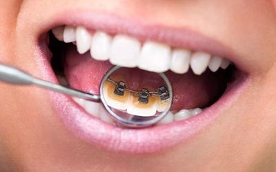 Лингвальные аппараты - Стоматология Линия Улыбки
