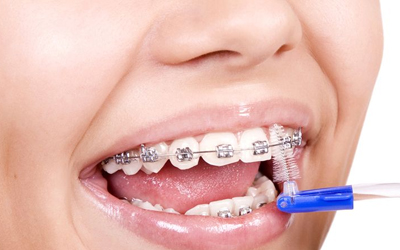 Металлические брекеты - Стоматология Линия Улыбки