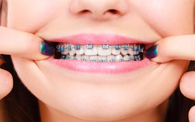 Наличие брекетов - Стоматология Линия Улыбки