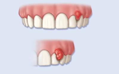Не большая гранулемы зуба - Стоматология Линия Улыбки