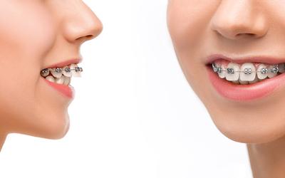 Основные отличия брекетов металл и керамика - Стоматология Линия Улыбки