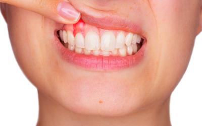 Причины появления гранулемы зуба - Стоматология Линия Улыбки