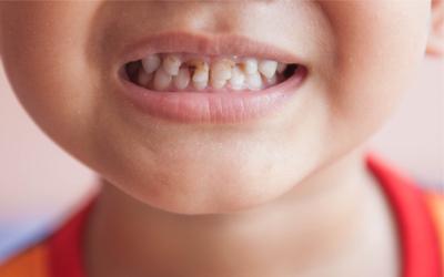 Развитие периодонтита у детей - Стоматология Линия Улыбки