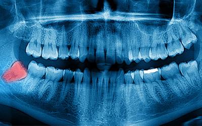 Рентгенография и ортопантомограмма - Стоматология Линия Улыбки