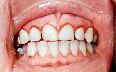 Воздействие агрессивных химических составов приводит к гингивиту - Стоматология Линия Улыбки