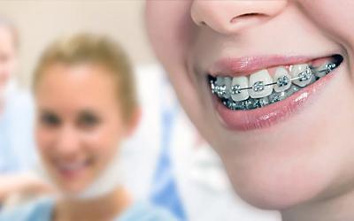 Выбираем брекеты - Стоматология Линия Улыбки