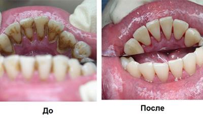 Зубной камень - Стоматология Линия Улыбки