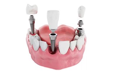 Зубные коронки - Стоматология Линия Улыбки
