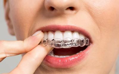 Эффективные заменители брекетов - Стоматология Линия Улыбки