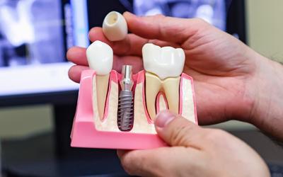 Импланты Xive - Стоматология Линия Улыбки