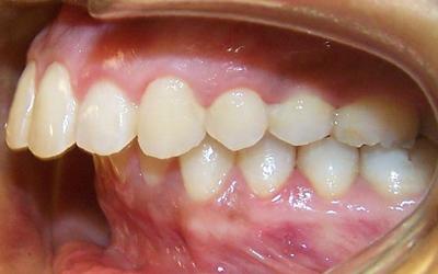 Исправление дистального прикуса - Стоматология Линия Улыбки