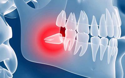 Капюшон «восьмерки» - Стоматология Линия Улыбки