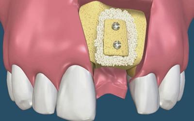 Наращивание костной ткани - Стоматология Линия Улыбки