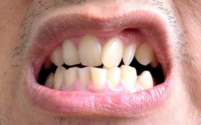 Неровный прикус - Стоматология Линия Улыбки
