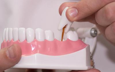 Ортопедическая стоматология - Стоматология Линия Улыбки