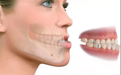 Прогнатия - Стоматология Линия Улыбки
