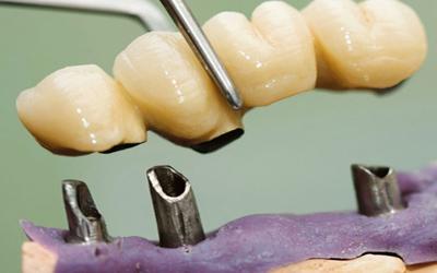 Совмещение костной пластики с имплантацией - Стоматология Линия Улыбки