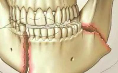 Травма челюсти - Стоматология Линия Улыбки