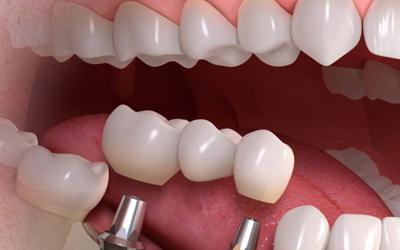 Удобная конструкция имплантов Xive - Стоматология Линия Улыбки