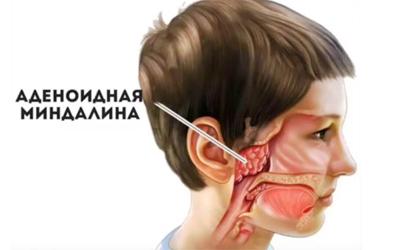 Аденоиды - Стоматология Линия Улыбки