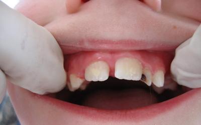 Аплазия зубов - Стоматология Линия Улыбки