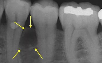 Боковая периодонтальная киста - Стоматология Линия Улыбки