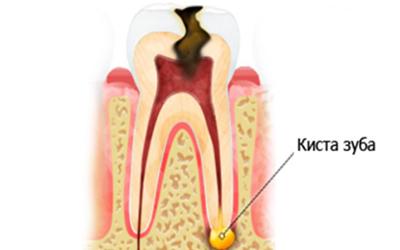 Боковая периодонтальная киста зуба - Стоматология Линия Улыбки
