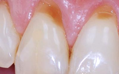 Дефект эмали зубов - Стоматология Линия Улыбки