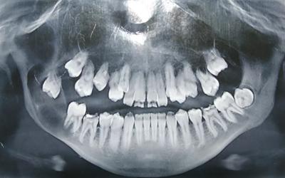 Фолликулярная киста зуба - Стоматология Линия Улыбки