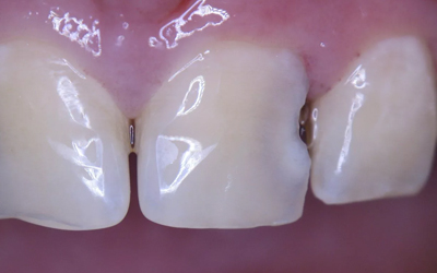 Кариес между зубами - Стоматология Линия Улыбки