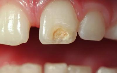 Лечение гипоплазии зубов - Стоматология Линия Улыбки