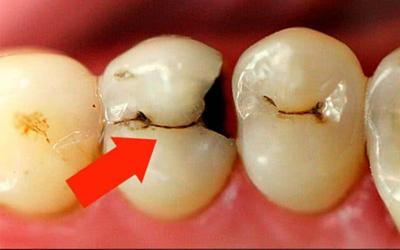 Лечение среднего кариеса - Стоматология Линия Улыбки