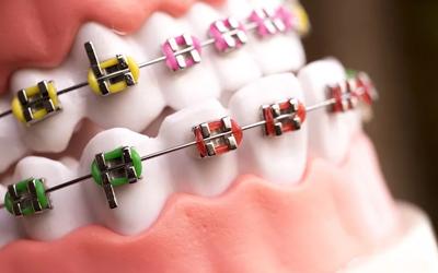 Лигатурные брекеты - Стоматология Линия Улыбки