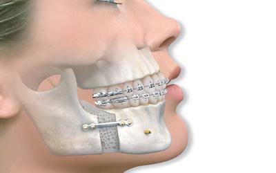 Мезиальный прикус лечение - Стоматология Линия Улыбки