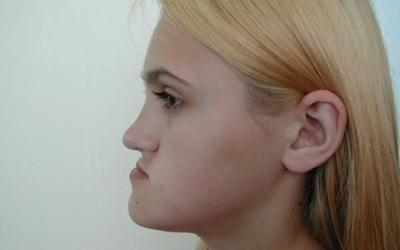 Мезиальный прикус у взрослого - Стоматология Линия Улыбки