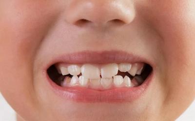 Молочные зубы - Стоматология Линия Улыбки