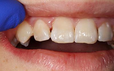 Начальный уровень межзубного кариеса - Стоматология Линия Улыбки