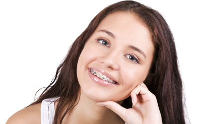 Недостатки брекет-систем - Стоматология Линия Улыбки